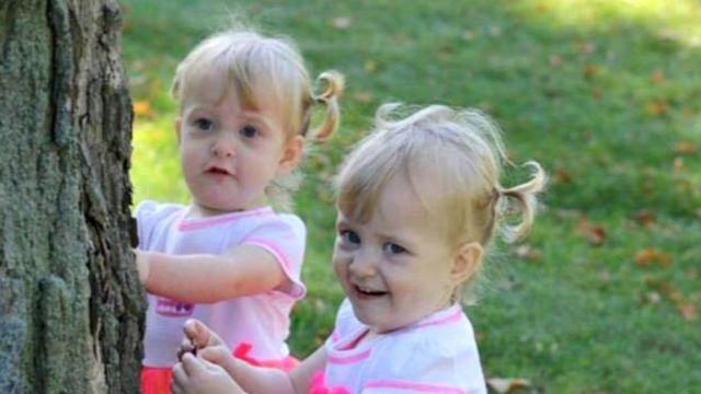 Conjoined Twins Learn to Live Apart