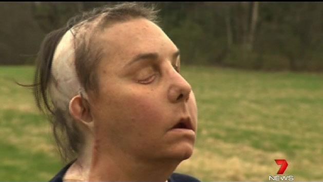 Woman gets face transplant