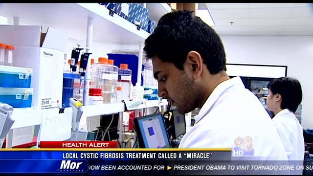Local cystic fibrosis treatment called a miracle