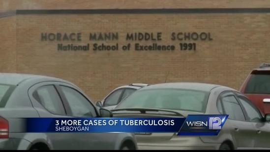 Sheboygan officials to hold news briefing on TB cases