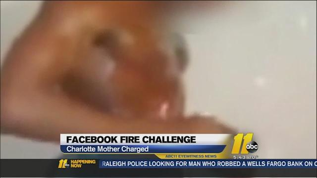 Charlotte woman arrested after teen burned in Facebook fire challenge