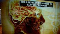 Sleep disorder linked to greater risk of dementia: Study