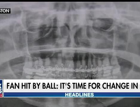 Fan hit in face by foul ball calls for change in the MLB