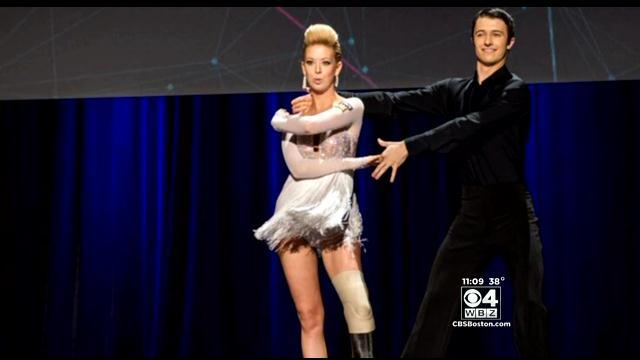 Dancer Who Lost Foot In Marathon Bombing Returns To The Stage