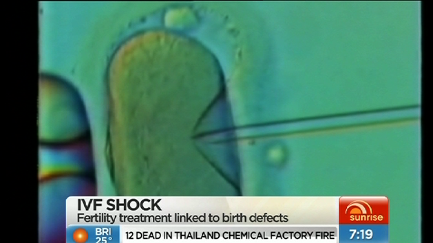 IVF linked to birth defects
