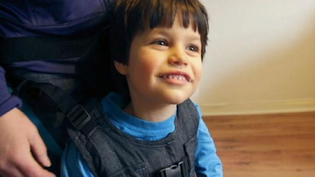 Harness Helps Disabled Children Walk