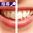 速效美白牙齒