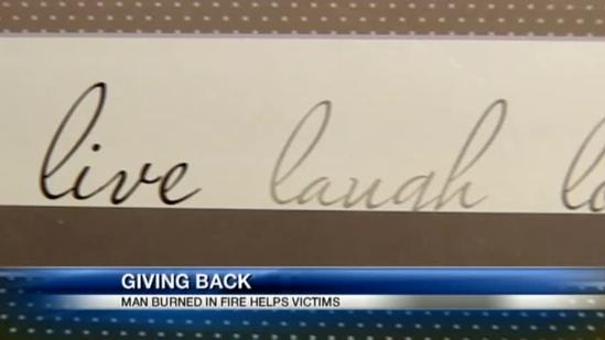 Burn survivor's recovery from explosion gives hope