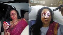 Hema Malini gets multiple stitches after Dausa accident