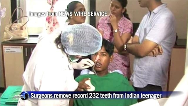 Surgeons remove 232 teeth from Indian teenager