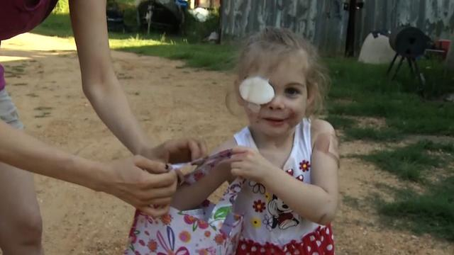 KFC finds no evidence girl with scars was asked to leave