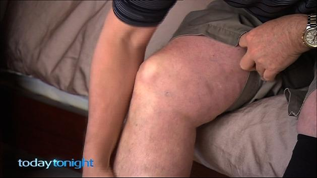 Treatment for spider veins