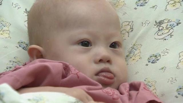 Thai surrogate vows to keep Down's syndrome baby