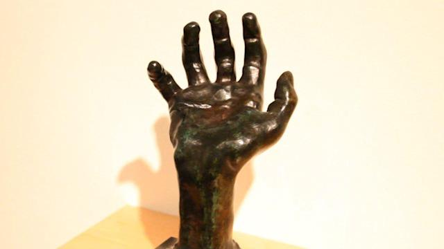 How Stanford Doctors Use Rodin Art for Diagnosis