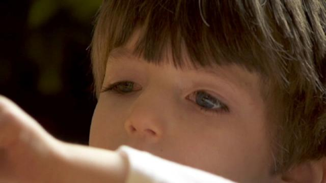 Boy Who Can't Blink Has a Shrinking Brain