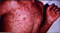 California experiencing increase in measles cases