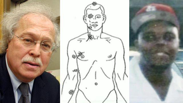 Dr. Baden explains his Michael Brown autopsy findings