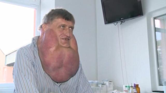 Massive tumor removed from man's face