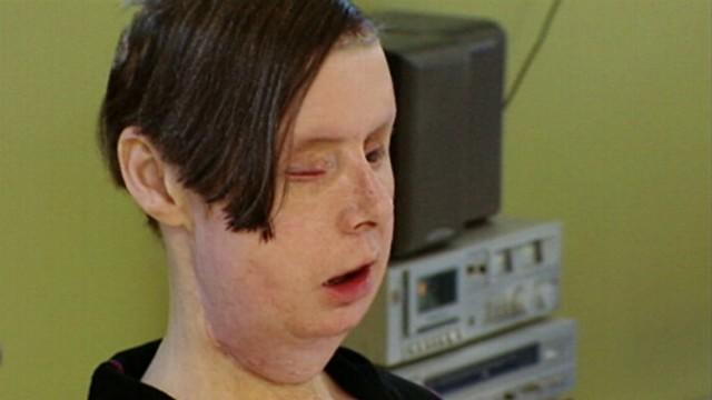 Chimp Attack Victim Charla Nash's Amazing Recovery