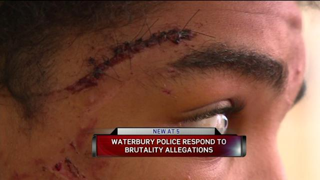 Waterbury Teen Says Police Beat Him During Arrest