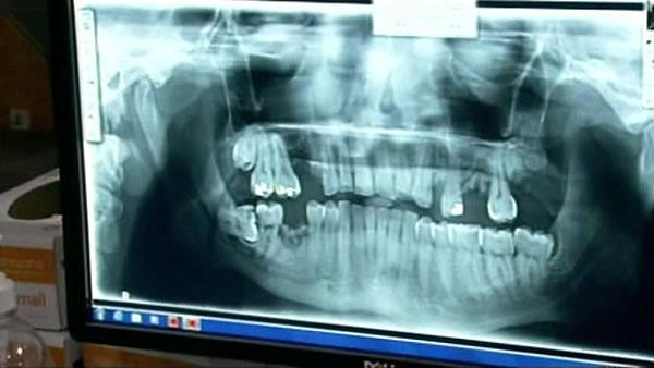 Lawmakers want to restore dental care to Medi-Cal