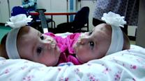 Conjoined Twins Separated, Home for Holidays