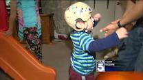 Epileptic Toddler Treated With Cannabis Oil