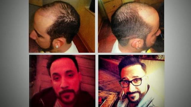 Before and After: Backstreet Boy Gets Hair Transplant