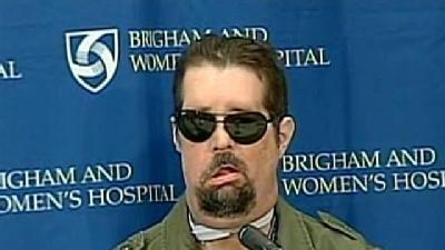 Girl Calls Daddy Handsome After Full Face Transplant