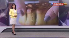 當心吃太多月餅!尿毒症病患竟抽出「牛奶血」