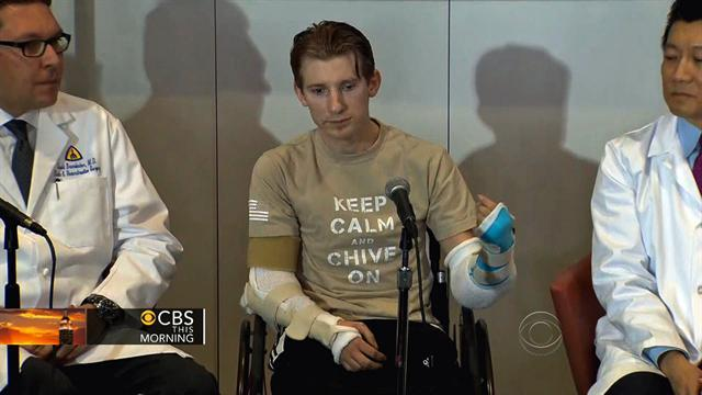Double-arm transplant: Soldier gets second chance