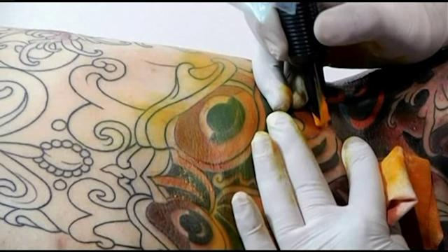 2 Local Infections Linked to Tattoo Ink