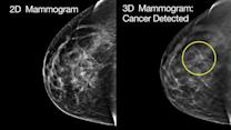 Study: 3-D Breast Scans More Accurate