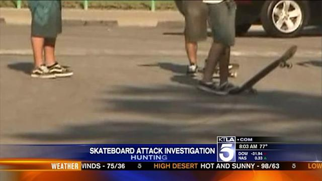 Dad of Teen Accused in Skateboard Beating Says Son Is Innocent