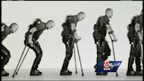 Cutting-edge prosthetic technology available for bombing survivors