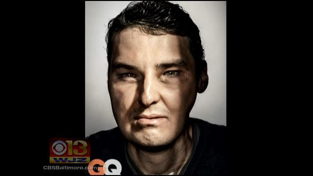 Md. Face Transplant Patient Featured On The Cover Of GQ