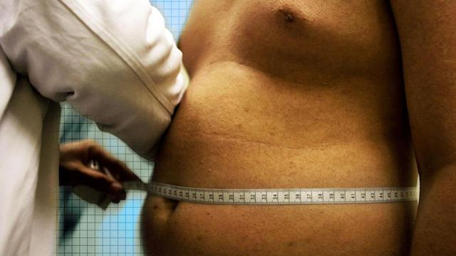 Study links obesity and ADHD