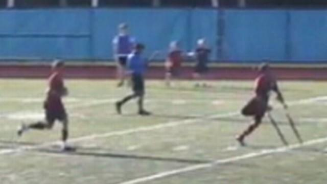 One-Legged Soccer Player Scores Goal