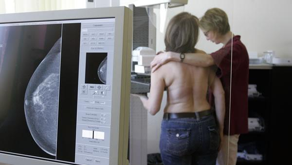 UCSF study has new guidelines for women and mammograms