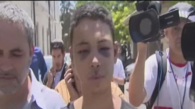 Israeli police officer punished for teen's beating