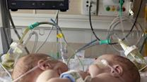 Conjoined Twins Separated at Dallas Hospital