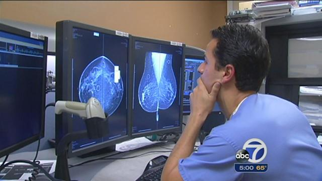 Study: Breast cancer rates declining in Marin Co.
