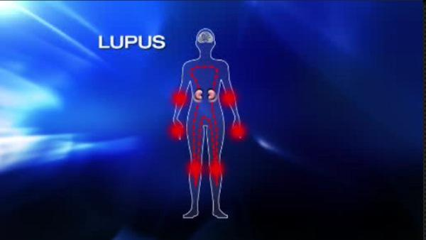 Lupus foundation aims to raise awareness