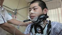 Chinese boy implanted with 3D printed vertebra