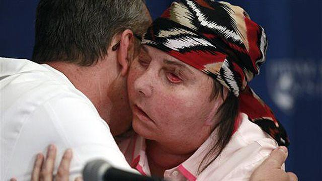 Vermont woman disfigured in attack reveals new face