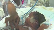 Caring for preemies